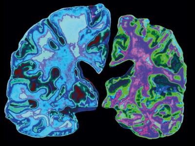 AlzheimersBrain.jpg