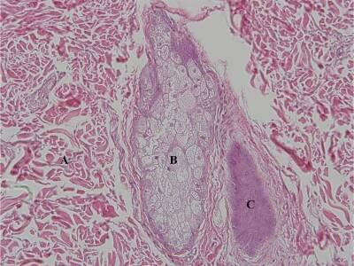 Sebaceous gland 20X.jpg